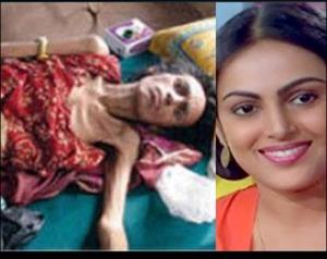 aids affected actress